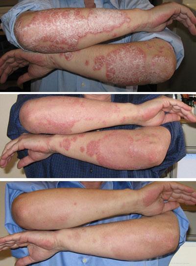 psoriasis removal laser)